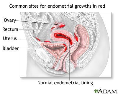 female anatomy, endometriosis